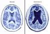 Business Sponsorships Sought for SCV Walk to End Alzheimer's