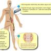 FDA OK's SetPoint Bioelectronic Therapy Study for Rheumatoid Arthritis