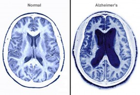 Alzheimer's brain and normal brain