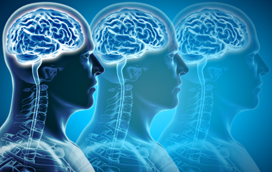 fda-alzheimers-brain-scan-stock-image