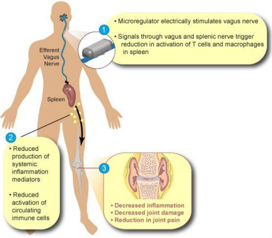 SetPoint nerver stimulation for rheumatoid arthritis